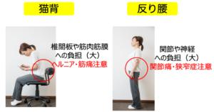 腰痛の根本的な原因となる猫背と反り腰姿勢の解説