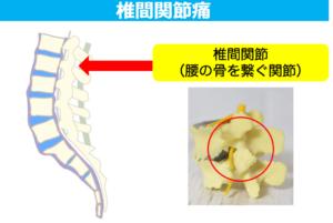 椎間関節痛の解説