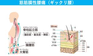 筋筋膜性腰痛とギックリ腰の解説