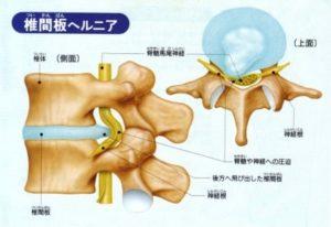 椎間板ヘルニアの説明