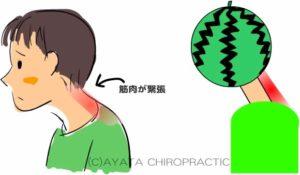 頭痛の原因 緊張型頭痛