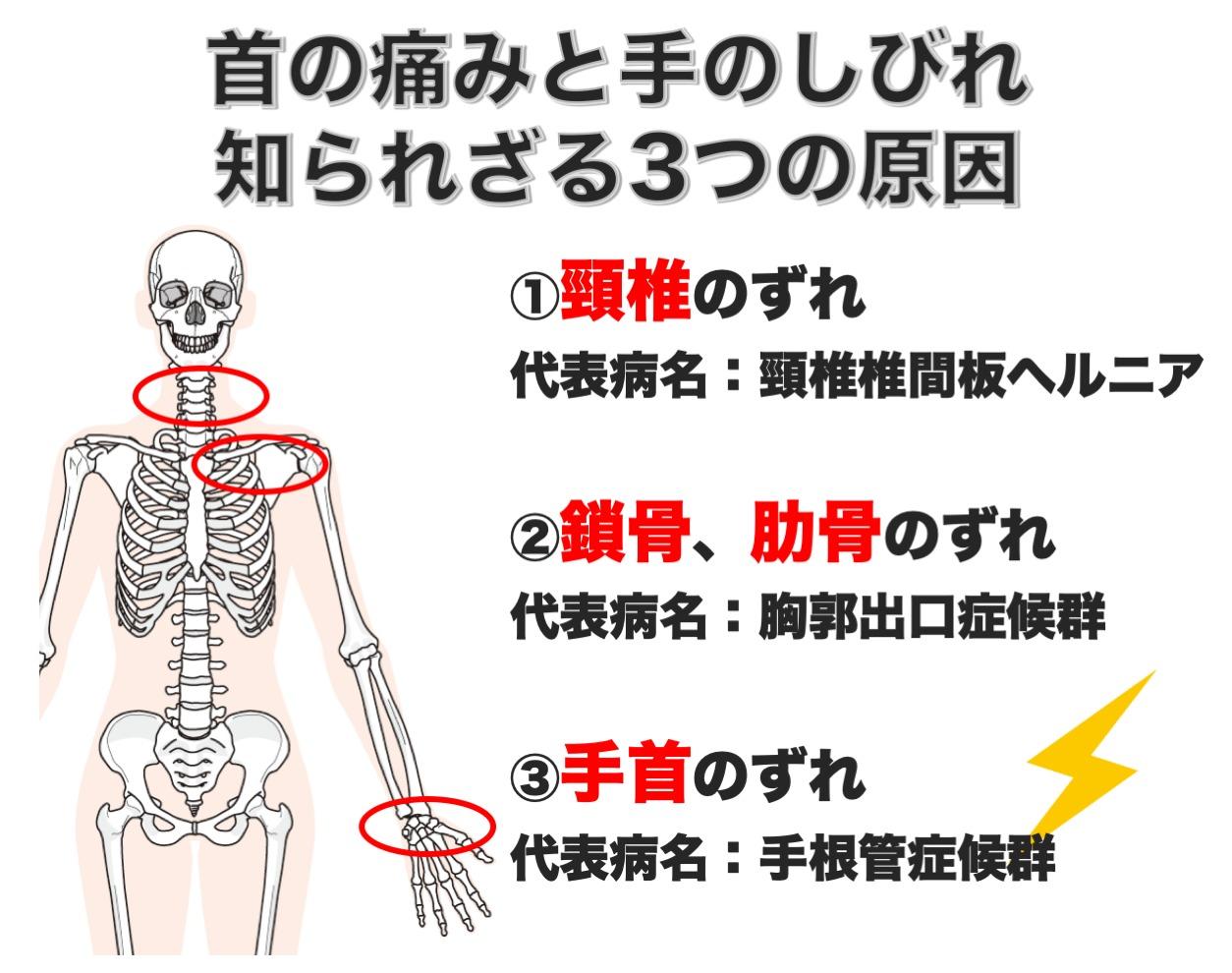 首の痛みと手のしびれの原因