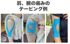 五十肩、四十肩、肩関節周囲炎などの肩の痛みを緩和するためのテーピング方法