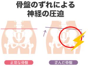 坐骨神経痛の原因 骨盤のずれ