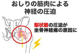 坐骨神経痛の原因 梨状筋の圧迫