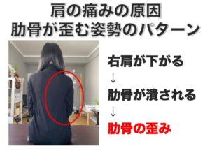 肩の痛みの原因 五十肩に多い姿勢