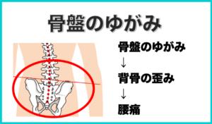 腰痛の原因となる骨盤の歪み