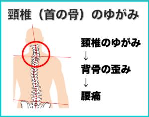 頸椎(首の骨)の歪みによる腰痛
