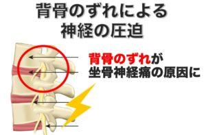 背骨のずれが神経を圧迫して足のしびれとおしりの痛みを起こす 別府整体姿勢専門サロンゆのまち