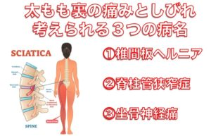 太もも裏の痛みとしびれの原因|別府整体姿勢専門サロンゆのまち