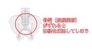 骨盤の歪み(仙腸関節)が足のしびれとおしりの痛みの原因に 別府整体姿勢専門サロンゆのまち