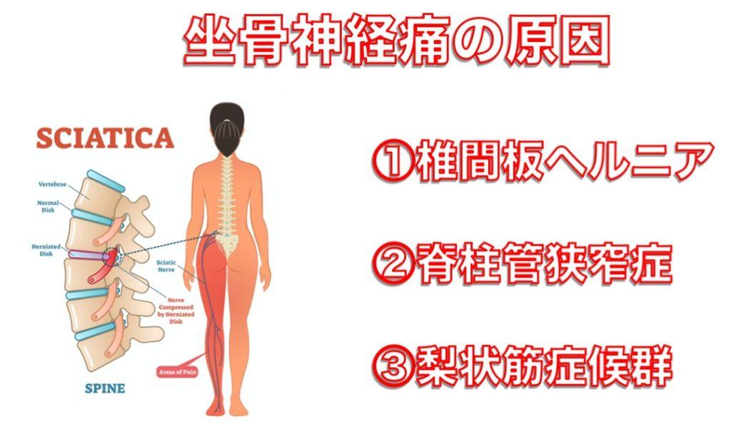 坐骨神経痛の症状とその原因 悪化させない3つの生活の注意点|別府整体姿勢専門サロンゆのまち