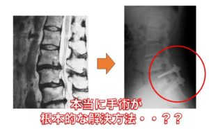 腰痛と足のしびれの治療法 別府整体姿勢専門サロンゆのまち
