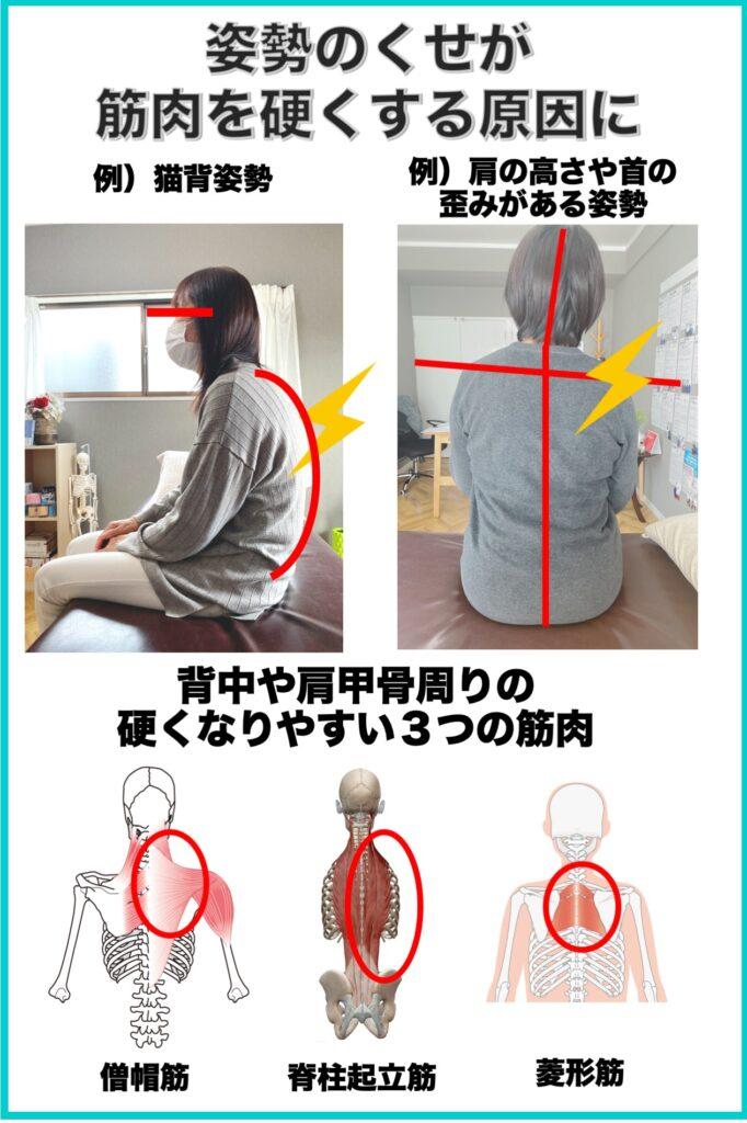 別府整体姿勢専門サロンゆのまち 背中の痛みの原因姿勢