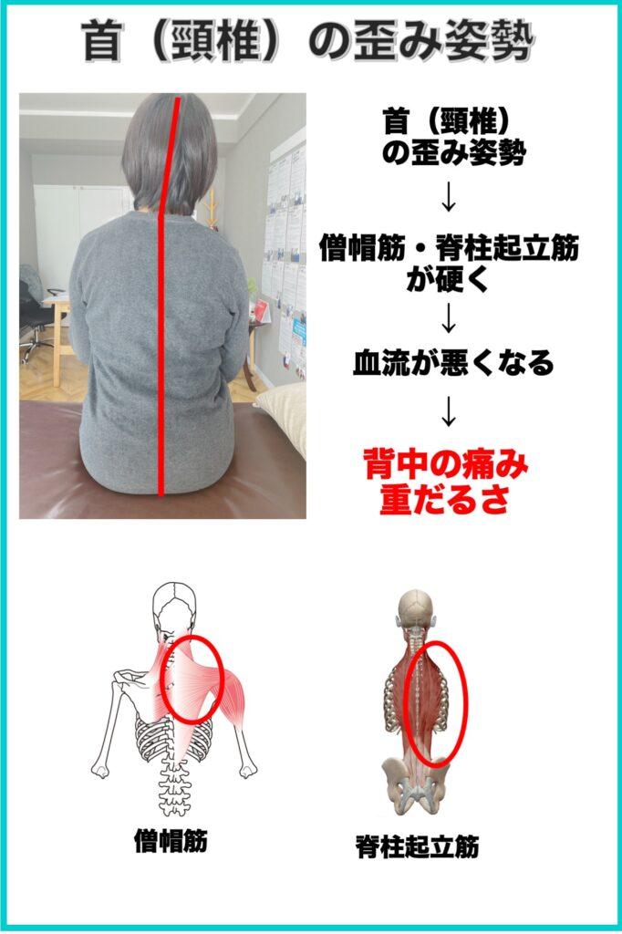 別府整体姿勢専門サロンゆのまち 頸椎の歪み姿勢と背中の痛みの関係性