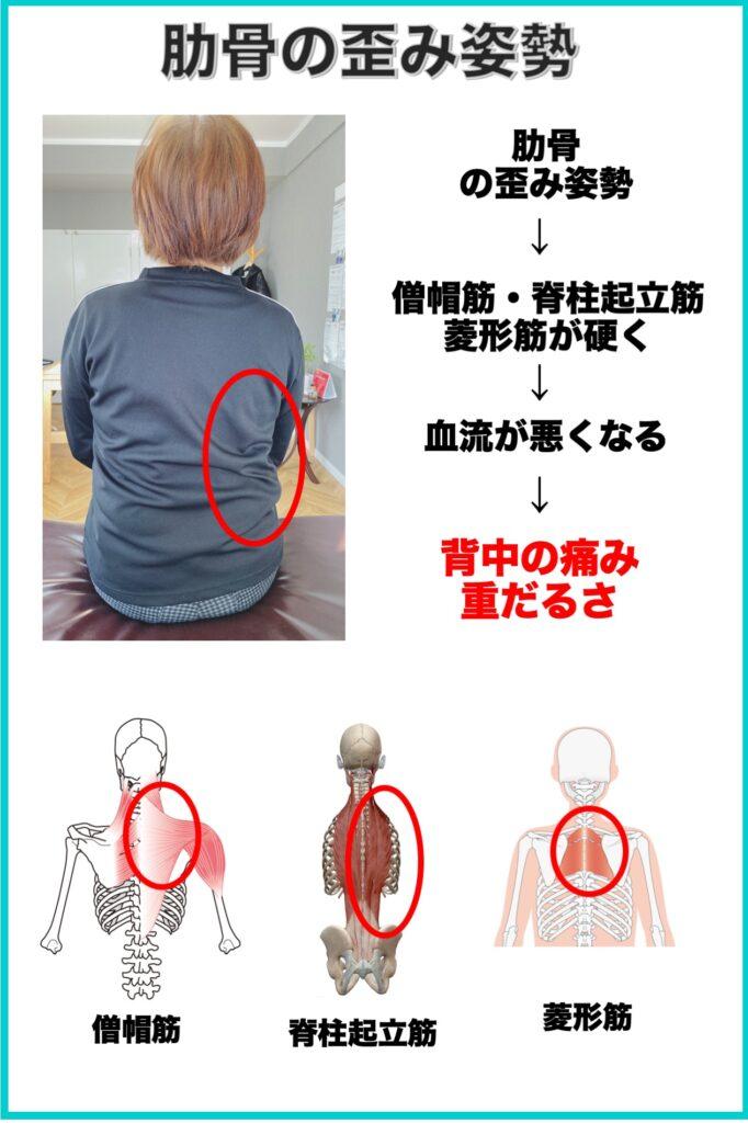 別府整体姿勢専門サロンゆのまち 肋骨の歪み姿勢と背中の痛みの関係性