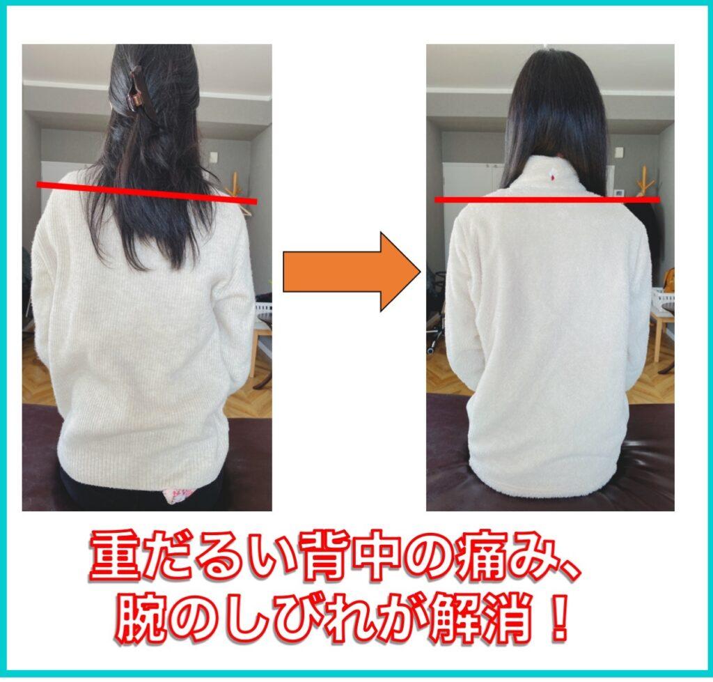 別府整体姿勢専門サロンゆのまち 重だるい 背中の痛みと腕の痺れが改善しました!