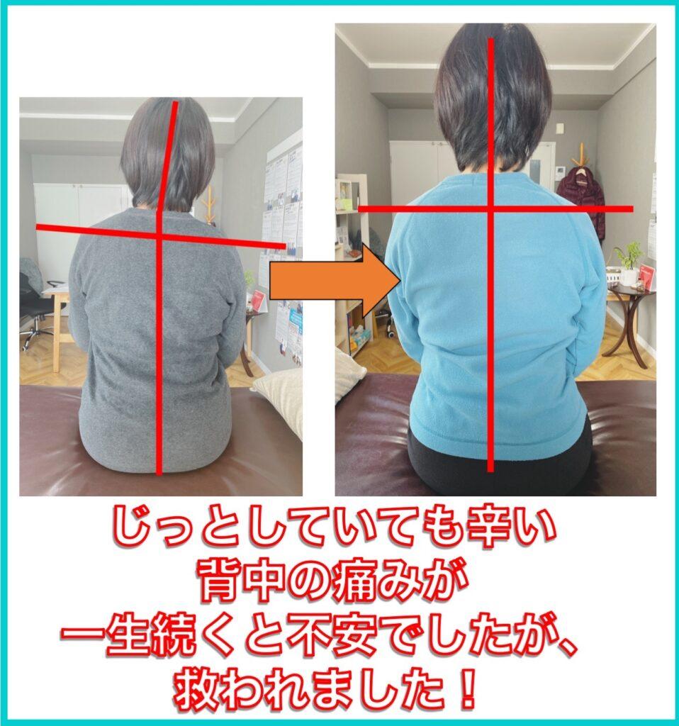 別府整体姿勢専門サロンゆのまち じっとしても辛い背中の痛みが改善しました!