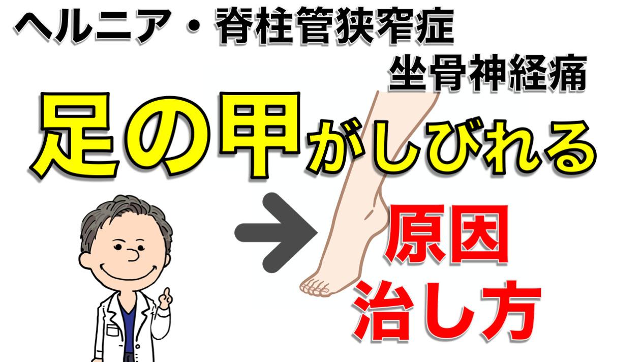 【足の甲が痺れる】その原因とは? 改善のための自己整体法もご紹介します