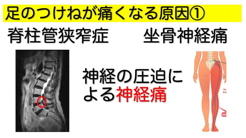 【足のつけ根(股関節の外側)の痛み】の原因と対策〜知らないと損する自己整体法のご紹介〜